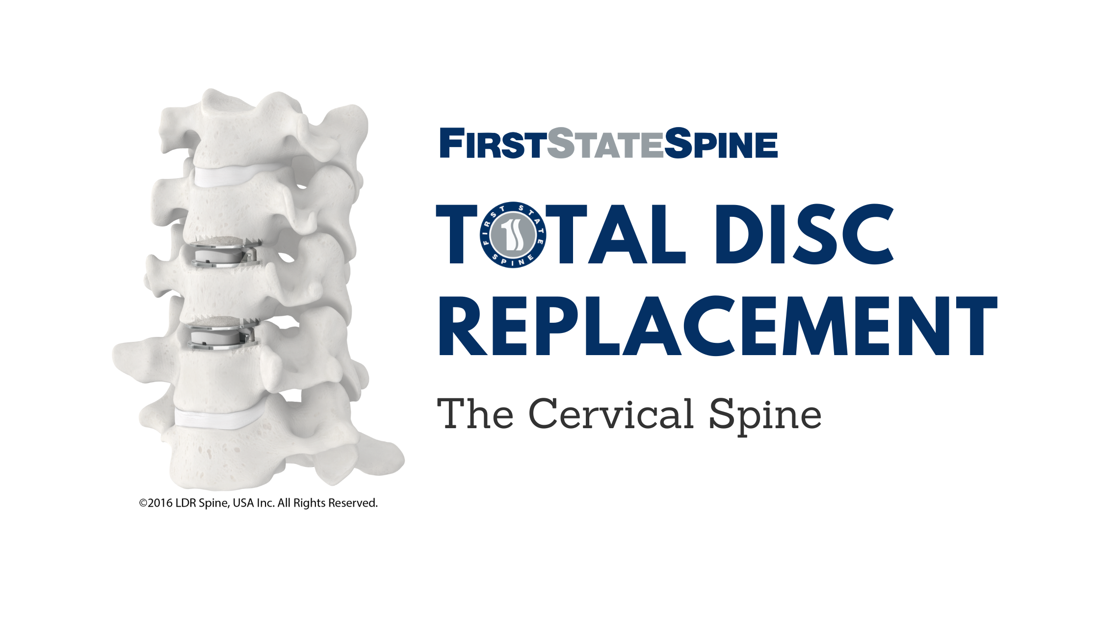 Total Disc Replacement: Cervical Spine